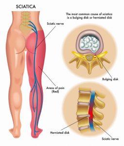 Nerve-root-irritation